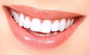 Безопасное отбеливание зубов Киев. Отбеливание зубов системой Beyond Polus. - изображение 1