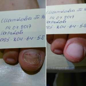 Медицинский аппаратный педикюр, лечение трещин, Харьков - изображение 1
