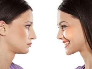 Реконструкция носа у одного из лучших хирургов Украины Андрея Харькова - изображение 1